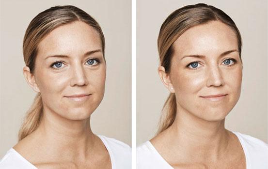 Dermal Fillers - Dermal Clinic | Beauty treatments in Edinburgh