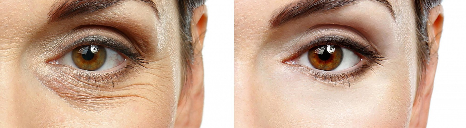 Dermal Fillers - Dermal Clinic | Beauty treatments in Edinburgh