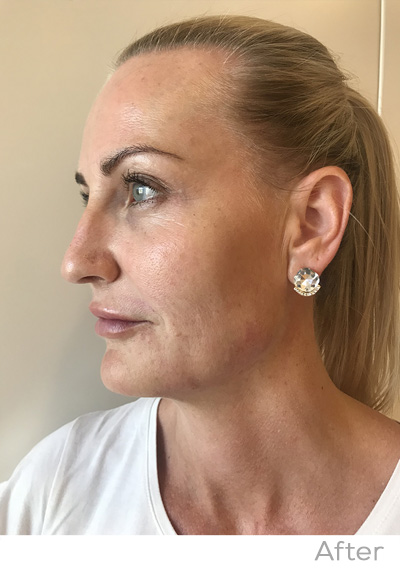 Non-surgical Nose Reshape - Dermal Clinic | Beauty